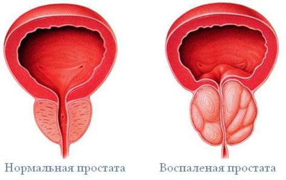 sintomi della prostatite cronica de